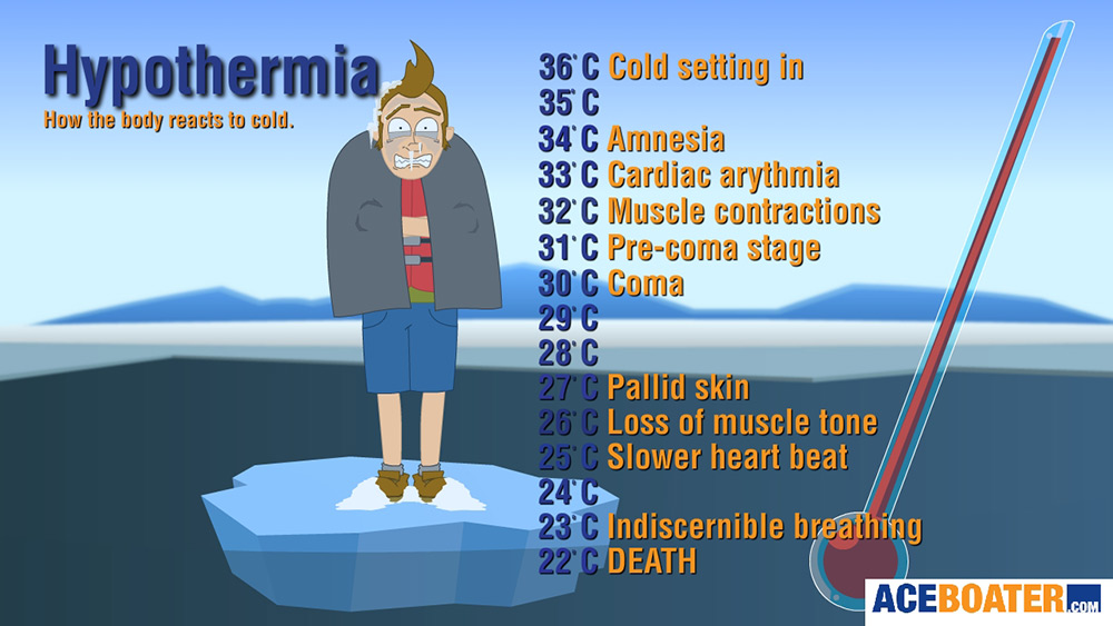 Image result for hypothermia